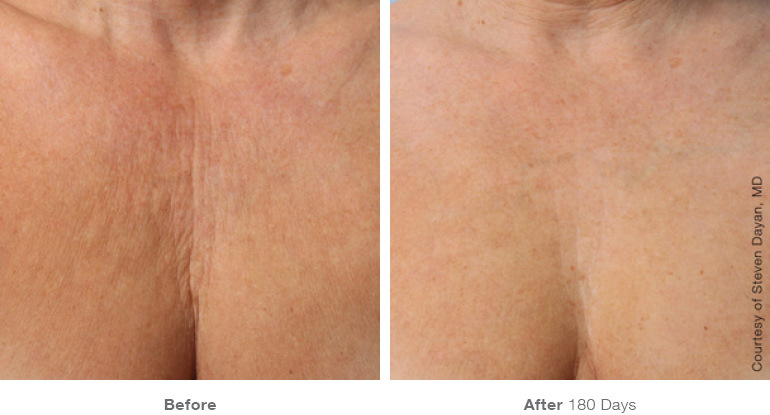 injectables side effects