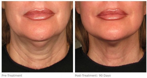 Ultherapy - Before and After
